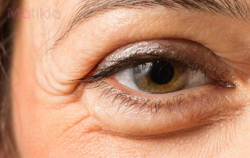 علت سیاهی و پف زیر چشم