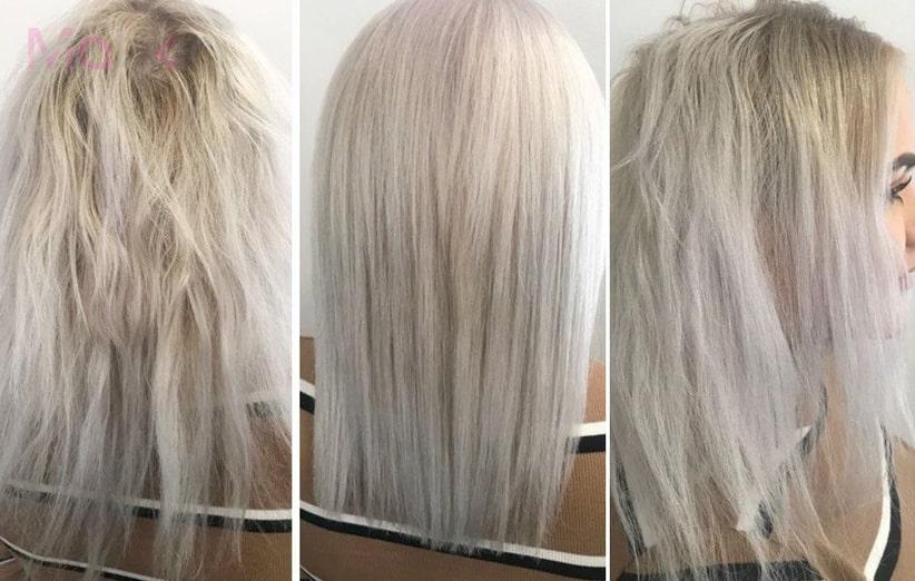اولاپلکس مو چیست