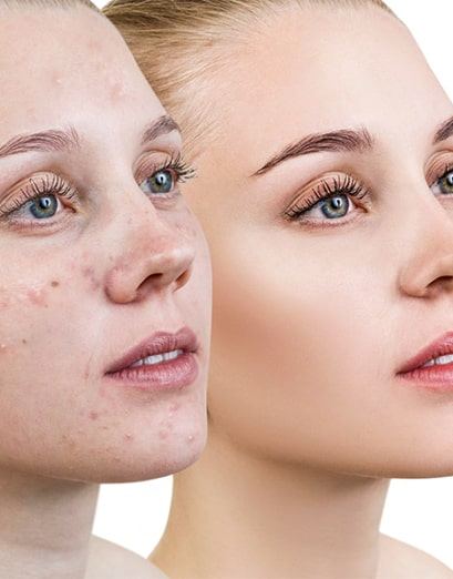 مزایای استفاده از روش میکرونیدلینگ برای جوانسازی پوست